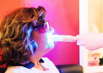 Witten van tanden